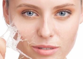 CLINICA ESTETICA FACIAL Y CORPORAL BIENESTAR Peeling Facial